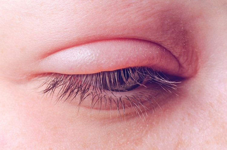 Alergia oczu na kosmetyki kolorowe – domowe sposoby