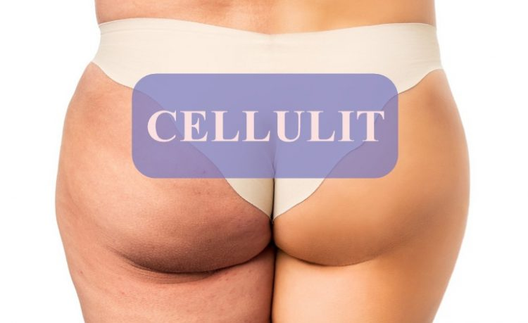 Cellulit - problem współczesnych kobiet