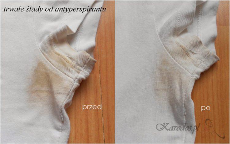 Zmora antyperspirantów, jak pozbyć się żółtych plam od potu na białych ubraniach?