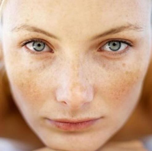 Przebarwienia skóry - jak się ich pozbyć?